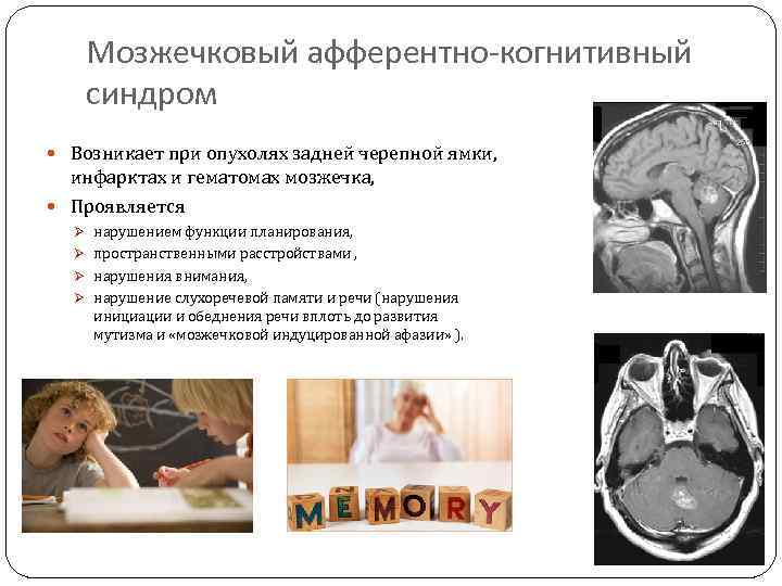 Головокружения при опухолях мозжечка