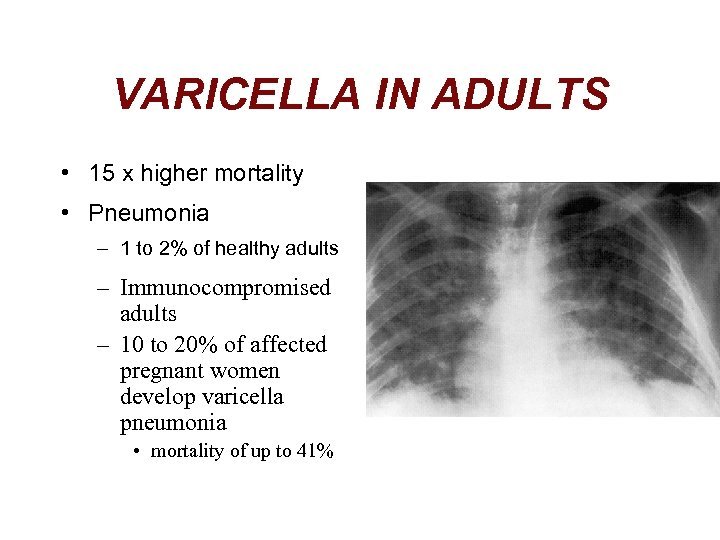 VARICELLA IN ADULTS • 15 x higher mortality • Pneumonia – 1 to 2%