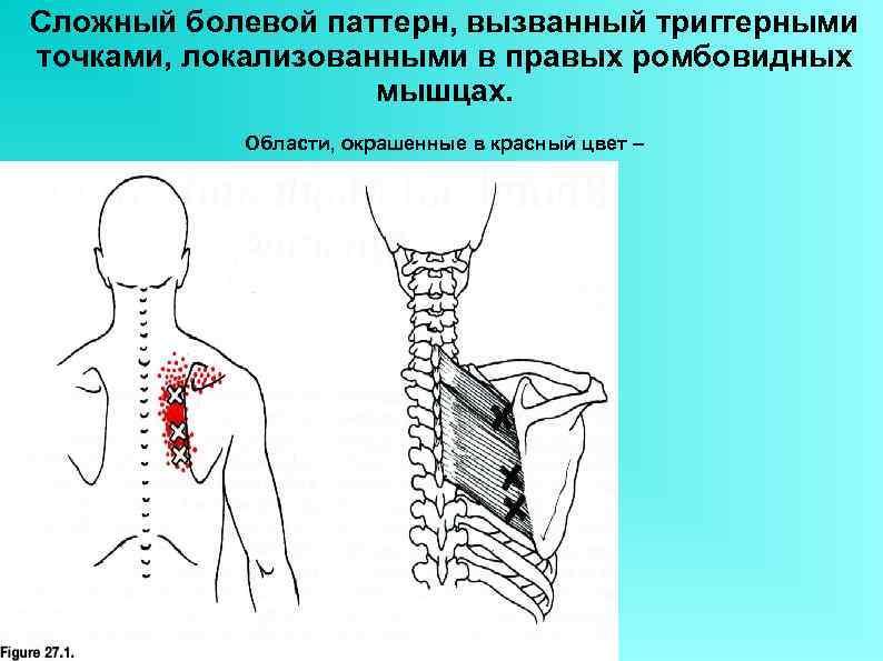 Сложный болевой паттерн, вызванный триггерными точками, локализованными в правых ромбовидных мышцах. Области, окрашенные в