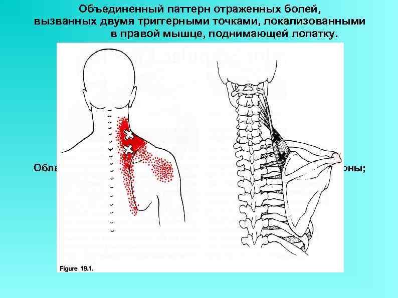 Объединенный паттерн отраженных болей, вызванных двумя триггерными точками, локализованными в правой мышце, поднимающей лопатку.