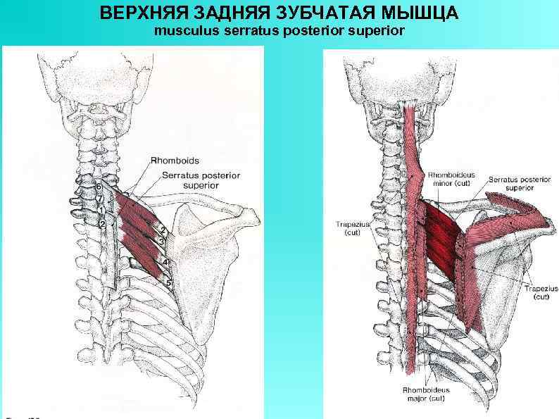 ВЕРХНЯЯ ЗАДНЯЯ ЗУБЧАТАЯ МЫШЦА musculus serratus posterior superior