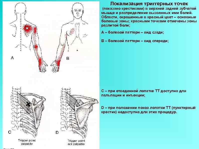 Локализация триггерных точек (показано крестиками) в верхней задней зубчатой мышце и распределение вызванных ими