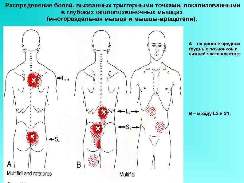 Распределение болей, вызванных триггерными точками, локализованными в глубоких околопозвоночных мышцах (многораздельная мышца и мышцы-вращатели).