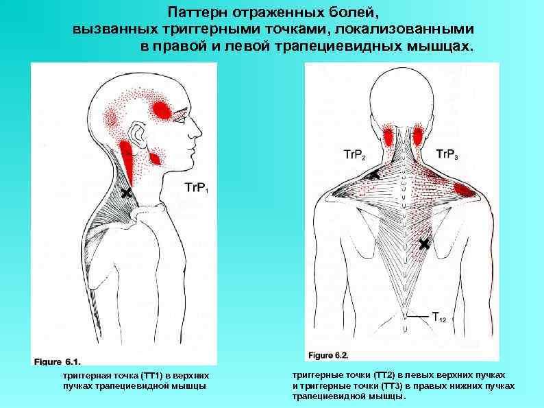 Паттерн отраженных болей, вызванных триггерными точками, локализованными в правой и левой трапециевидных мышцах. триггерная