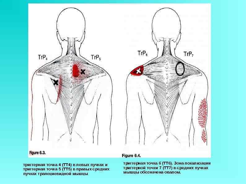 триггерная точка 4 (ТТ 4) в левых пучках и триггерная точка 5 (ТТ 5)