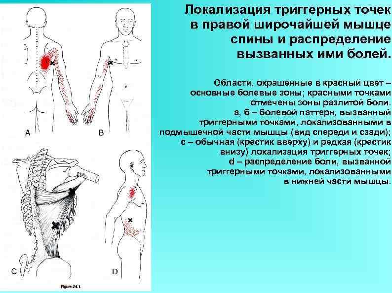 Локализация триггерных точек в правой широчайшей мышце спины и распределение вызванных ими болей. Области,
