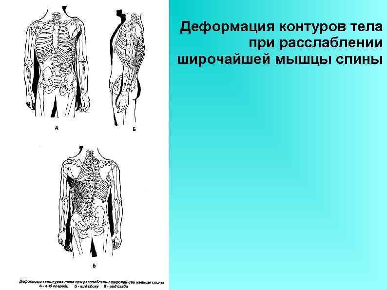 Деформация контуров тела при расслаблении широчайшей мышцы спины