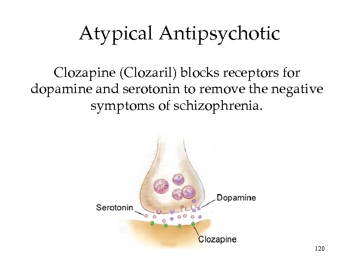 Atypical Antipsychotic Clozapine (Clozaril) blocks receptors for dopamine and serotonin to remove the negative