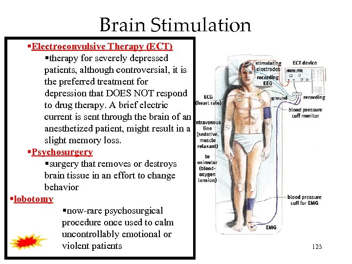Brain Stimulation Electroconvulsive Therapy (ECT) therapy for severely depressed patients, although controversial, it is