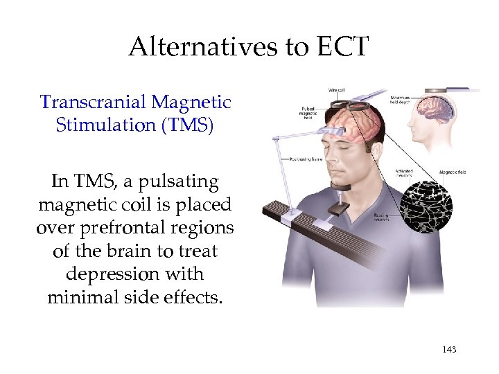Alternatives to ECT Transcranial Magnetic Stimulation (TMS) In TMS, a pulsating magnetic coil is