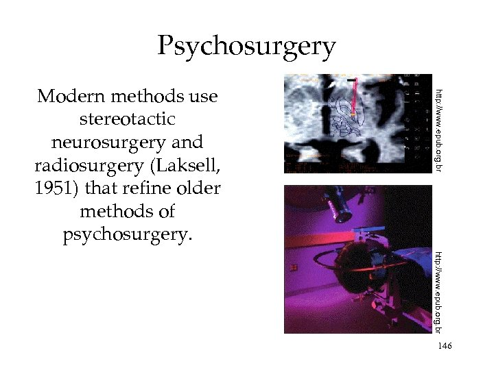 Psychosurgery http: //www. epub. org. br Modern methods use stereotactic neurosurgery and radiosurgery (Laksell,