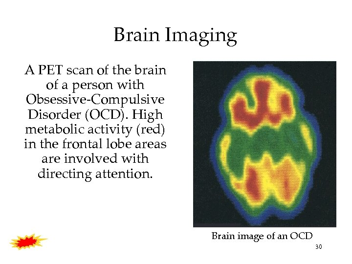 Brain Imaging A PET scan of the brain of a person with Obsessive-Compulsive Disorder
