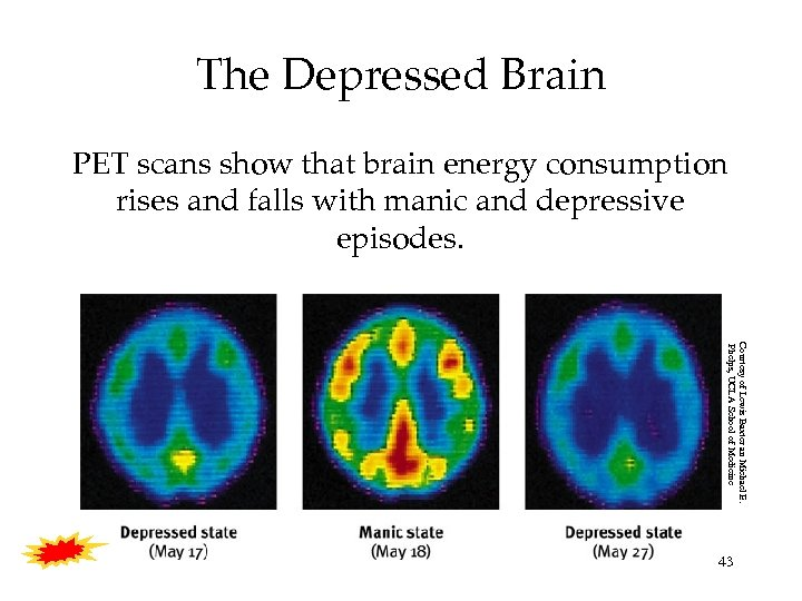 The Depressed Brain PET scans show that brain energy consumption rises and falls with