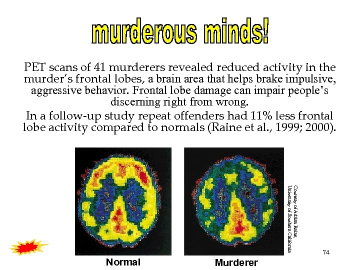 PET scans of 41 murderers revealed reduced activity in the murder's frontal lobes, a