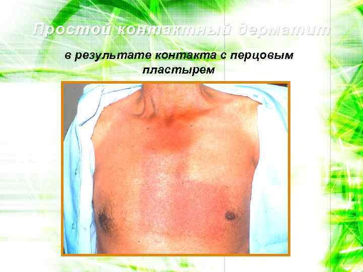 Простой контактный дерматит в результате контакта с перцовым пластырем