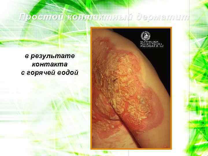 Простой контактный дерматит в результате контакта с горячей водой