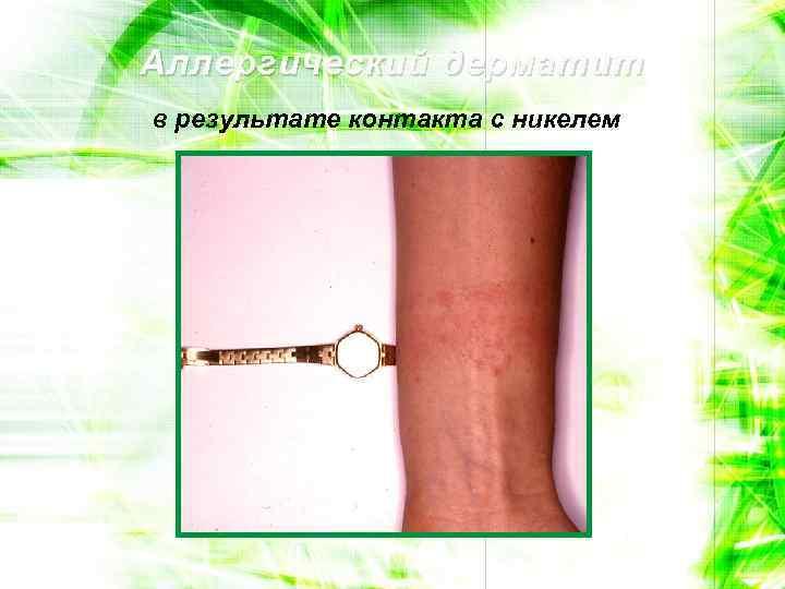 Аллергический дерматит в результате контакта с никелем