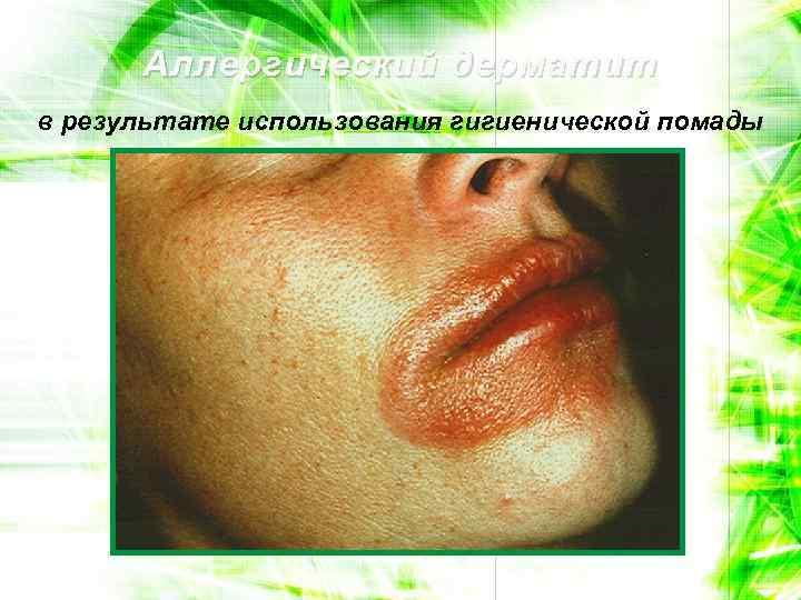 Аллергический дерматит в результате использования гигиенической помады