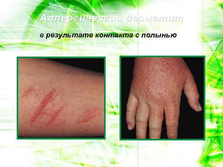 Аллергический дерматит в результате контакта с полынью