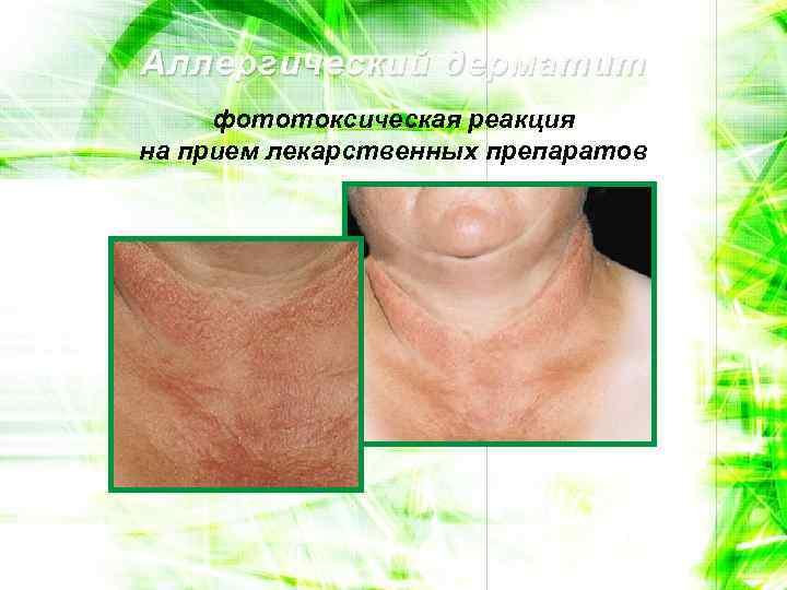 Аллергический дерматит фототоксическая реакция на прием лекарственных препаратов