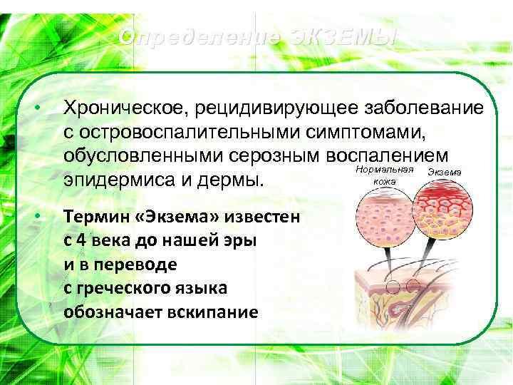 Определение ЭКЗЕМЫ • Хроническое, рецидивирующее заболевание с островоспалительными симптомами, обусловленными серозным воспалением Нормальная Экзема