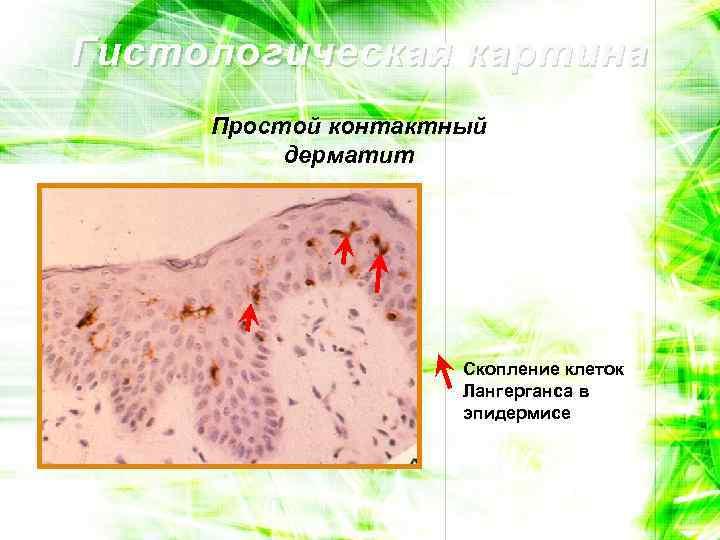 Гистологическая картина Простой контактный дерматит Скопление клеток Лангерганса в эпидермисе