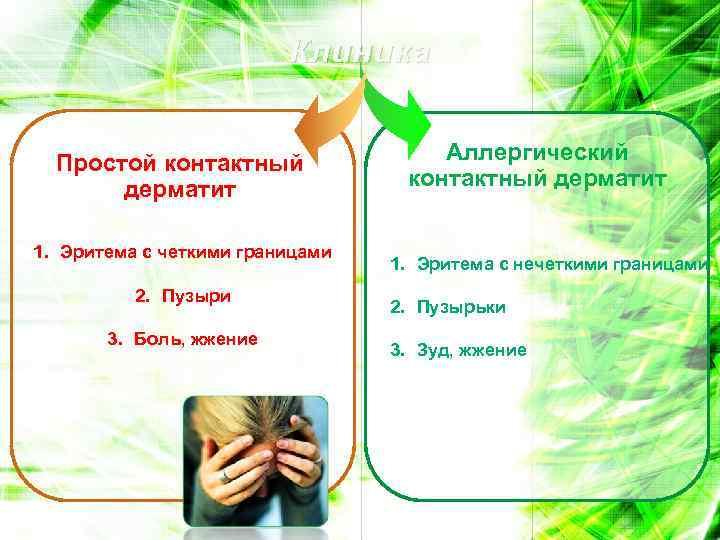 Клиника Простой контактный дерматит 1. Эритема с четкими границами 2. Пузыри 3. Боль, жжение