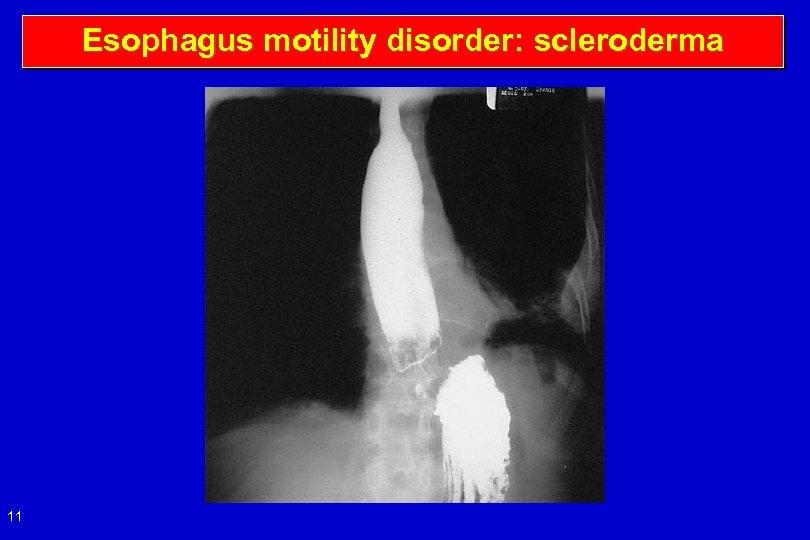Esophagus motility disorder: scleroderma 11