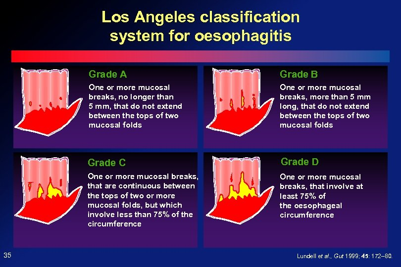Los Angeles classification system for oesophagitis Grade A One or more mucosal breaks, no