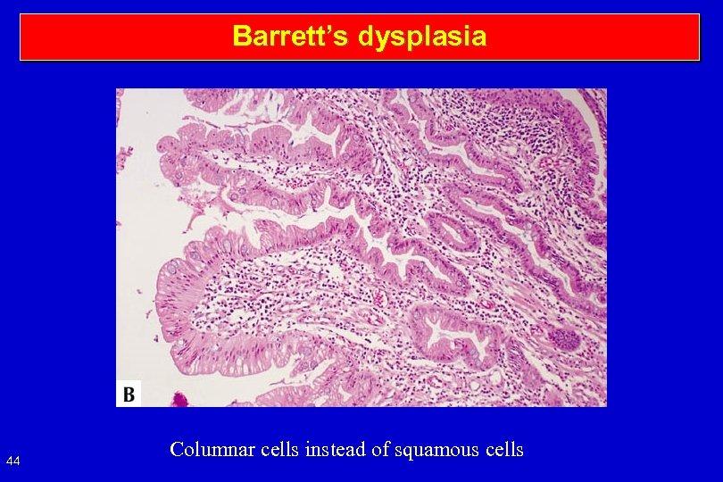 Barrett's dysplasia 44 Columnar cells instead of squamous cells