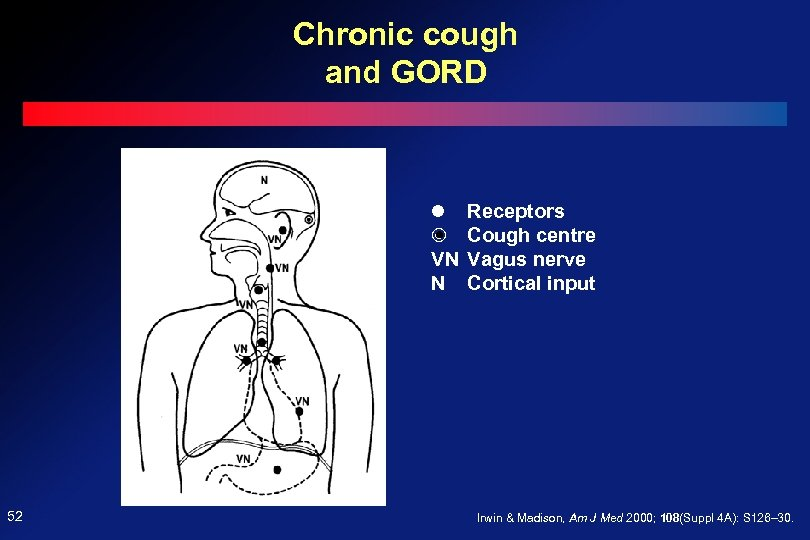 Chronic cough and GORD VN N 52 Receptors Cough centre Vagus nerve Cortical input