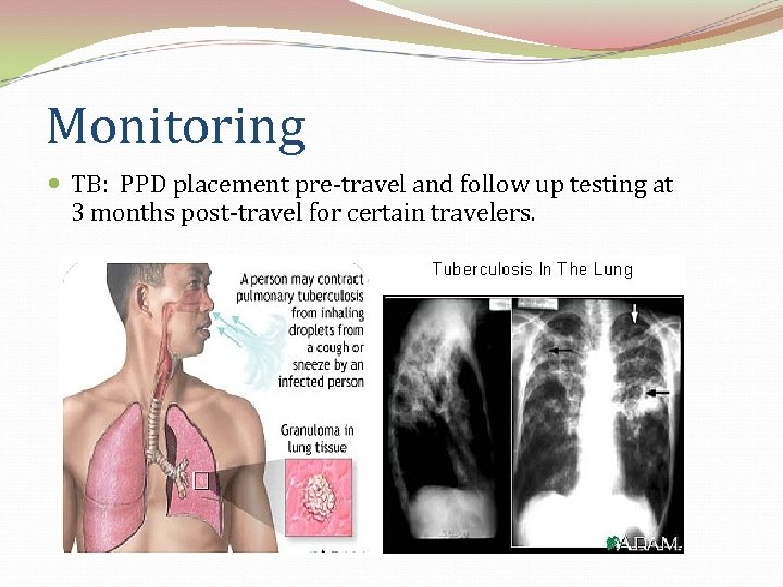 Monitoring TB: PPD placement pre-travel and follow up testing at 3 months post-travel for