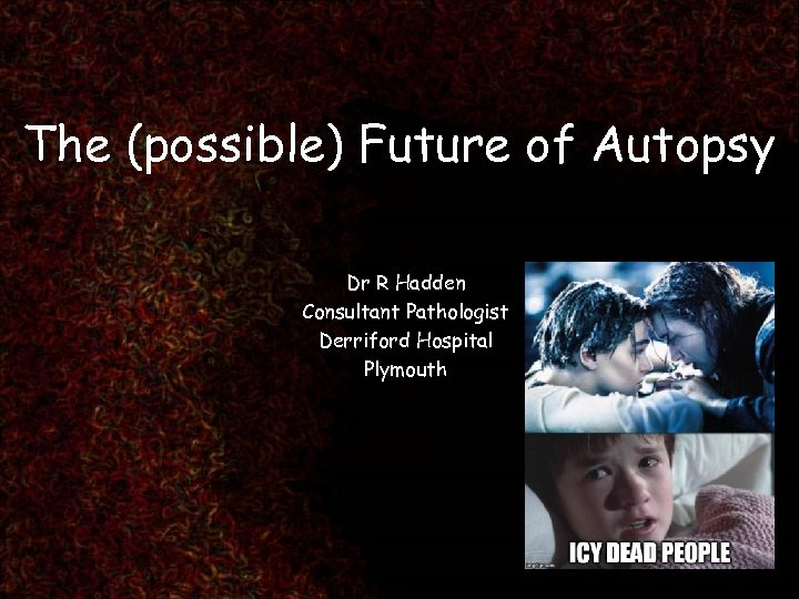 The (possible) Future of Autopsy Dr R Hadden Consultant Pathologist Derriford Hospital Plymouth