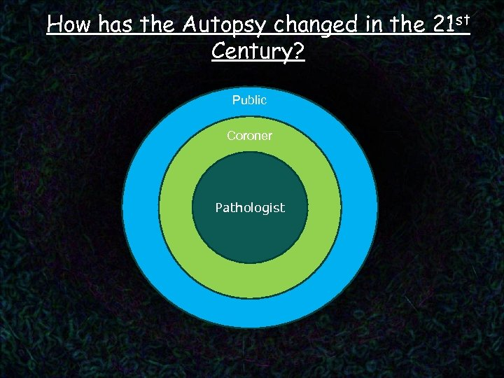 How has the Autopsy changed in the 21 st Century? Public Coroner Pathologist