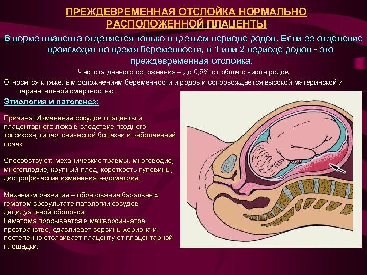ПРЕЖДЕВРЕМЕННАЯ ОТСЛОЙКА НОРМАЛЬНО РАСПОЛОЖЕННОЙ ПЛАЦЕНТЫ В норме плацента отделяется только в третьем периоде родов.