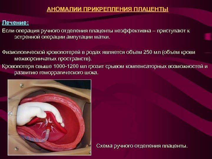 АНОМАЛИИ ПРИКРЕПЛЕНИЯ ПЛАЦЕНТЫ Лечение: Если операция ручного отделения плаценты неэффективна – приступают к эстренной