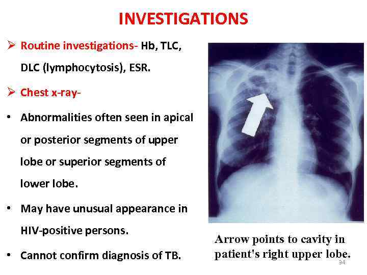 TUBERCULOSIS Ø Tuberculosis is a common disease prevalent