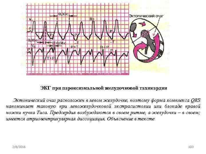 ЭКГ при пароксизмальной желудочковой тахикардии Эктопический очаг расположен в левом желудочке, поэтому форма комплекса