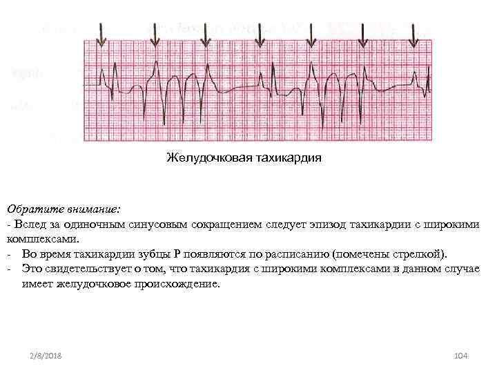 Желудочковая тахикардия Обратите внимание: Вслед за одиночным синусовым сокращением следует эпизод тахикардии с широкими