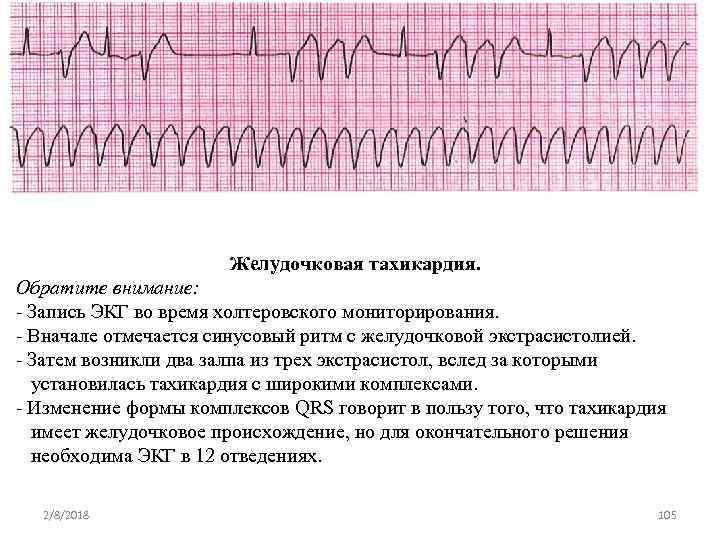 Желудочковая тахикардия. Обратите внимание: Запись ЭКГ во время холтеровского мониторирования. Вначале отмечается синусовый ритм