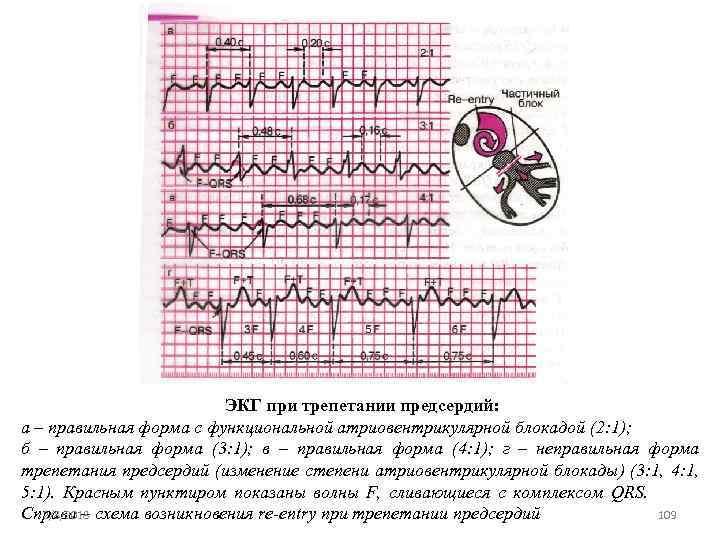 ЭКГ при трепетании предсердий: а – правильная форма с функциональной атриовентрикулярной блокадой (2: 1);