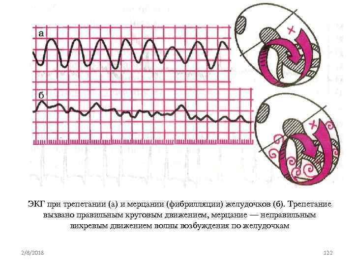 ЭКГ при трепетании (а) и мерцании (фибрилляции) желудочков (б). Трепетание вызвано правильным круговым движением,