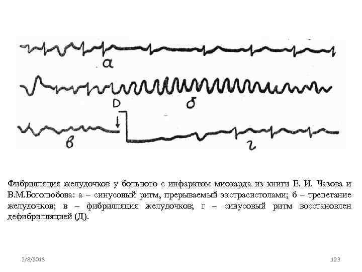 Фибрилляция желудочков у больного с инфарктом миокарда из книги Е. И. Чазова и В.