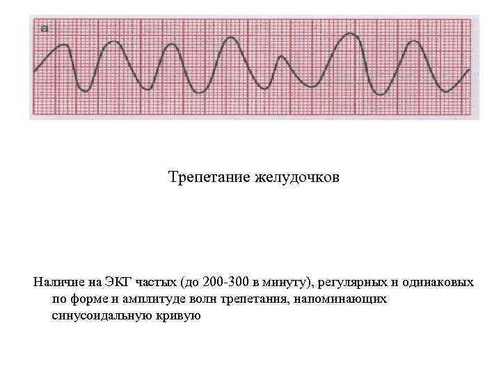 Трепетание желудочков Наличие на ЭКГ частых (до 200 300 в минуту), регулярных и одинаковых