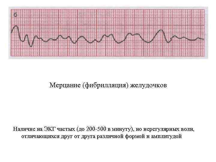 Мерцание (фибрилляция) желудочков Наличие на ЭКГ частых (до 200 500 в минуту), но нерегулярных