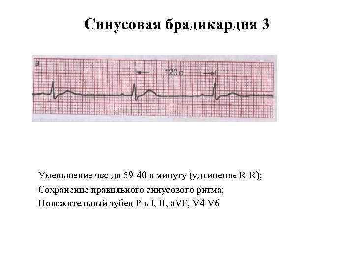 Синусовая брадикардия 3 Уменьшение чсс до 59 40 в минуту (удлинение R R); Сохранение