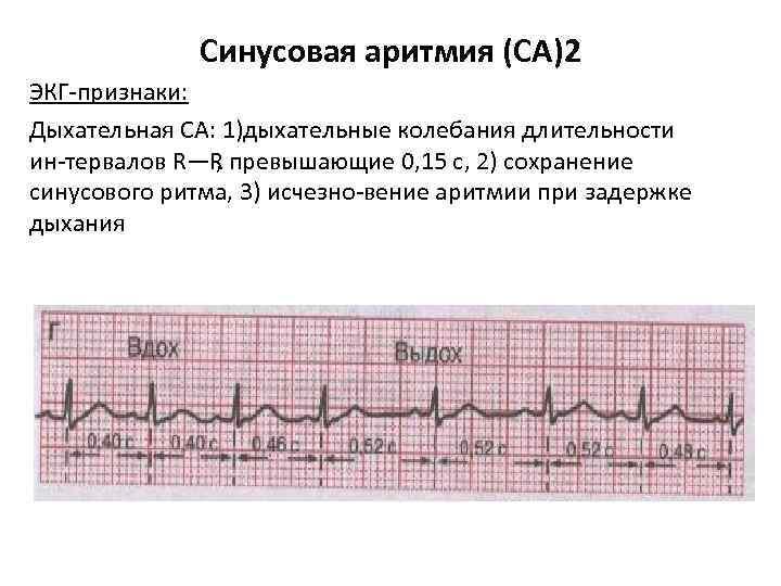 Синусовая аритмия (СА)2 ЭКГ признаки: Дыхательная СА: 1)дыхательные колебания длительности ин тервалов R—R превышающие