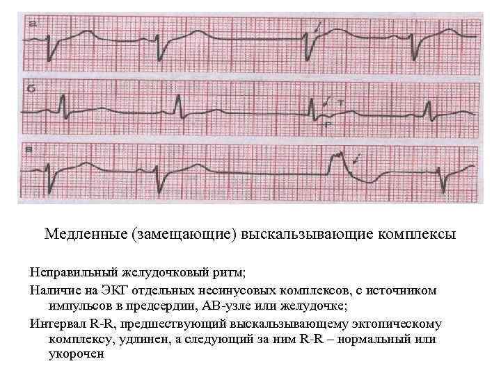 Медленные (замещающие) выскальзывающие комплексы Неправильный желудочковый ритм; Наличие на ЭКГ отдельных несинусовых комплексов, с