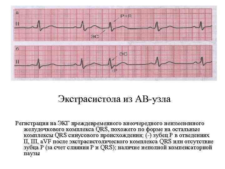 Экстрасистола из АВ узла Регистрация на ЭКГ преждевременного внеочередного неизмененного желудочкового комплекса QRS, похожего