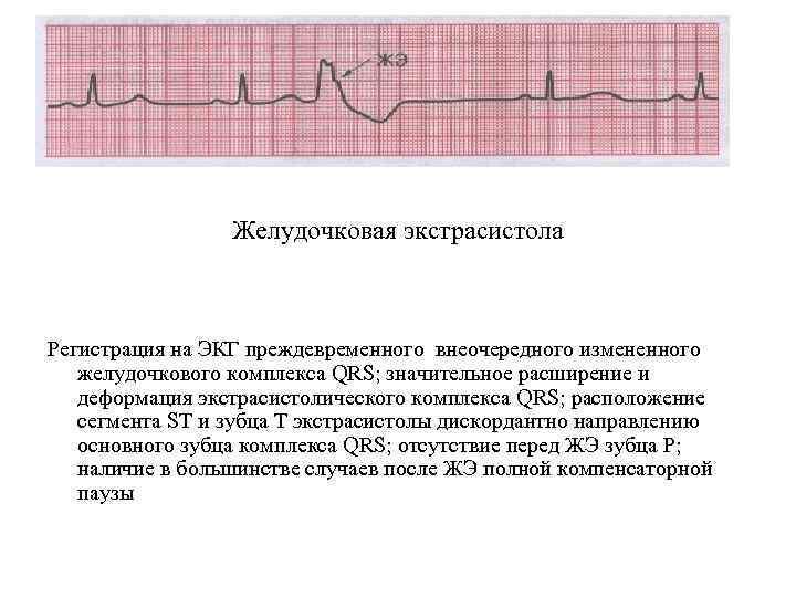 Желудочковая экстрасистола Регистрация на ЭКГ преждевременного внеочередного измененного желудочкового комплекса QRS; значительное расширение и